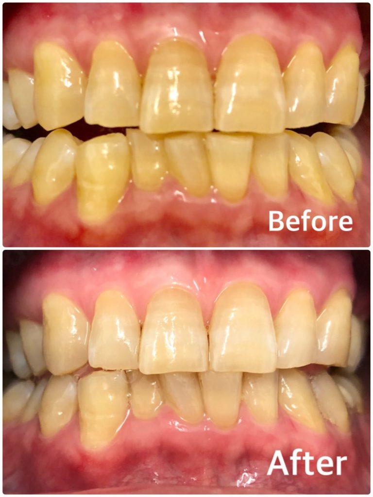 歯のセルフホワイトニングクーポン